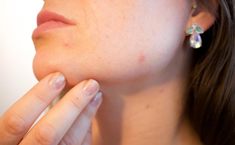 Пъпките по бузите може да са в резултат от дихателни проблеми